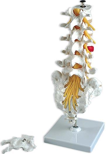 【送料無料】【無料健康相談付】3B社 腰椎模型 腰椎モデル(ヘルニア付) (a76-5)