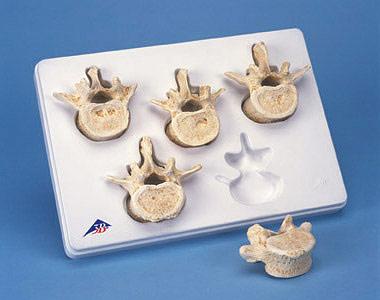 【送料無料】【無料健康相談 対象製品】3B社 脊椎骨模型 腰椎5個セット (a792)