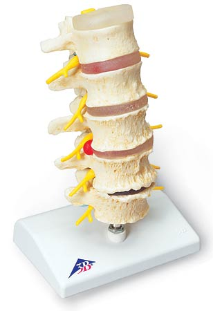 【送料無料】【無料健康相談 対象製品】3B社 病理学模型 椎間板ヘルニアと変形性脊椎症モデル (a795)