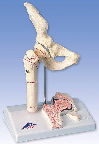 【送料無料】【感謝価格】3B社 病理学模型 大腿骨骨折モデル (a88)