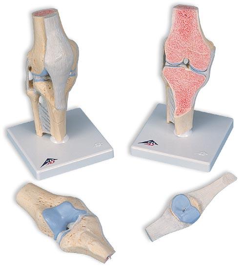 【送料無料】【無料健康相談 対象製品】3B社 関節模型 膝の関節断面3分解モデル (a89)   【smtb-s】 【fsp2124-6m】【02P06Aug16】