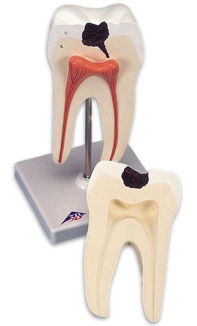 【送料無料】【無料健康相談 対象製品】3B社 歯模型 下顎大臼歯(2根)モデル (d10-4)