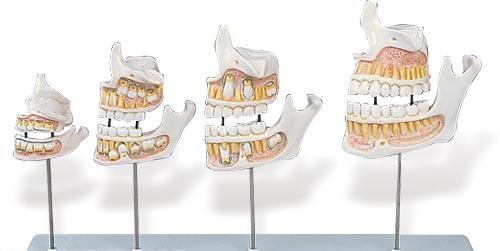 【送料無料】【無料健康相談 対象製品】3B社 歯・口腔模型 歯の成長過程モデル実物大 (d20)