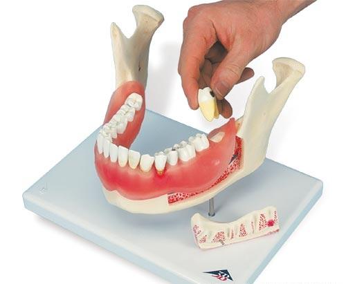 【送料無料】【無料健康相談 対象製品】3B社 歯・口腔模型 歯と歯茎の疾患モデル (d26)