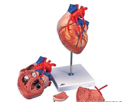 【送料無料】【無料健康相談 対象製品】3B社 心臓模型 心臓バイパス付2倍大・4分解モデル (g06)   【smtb-s】 【fsp2124-6m】【02P06Aug16】