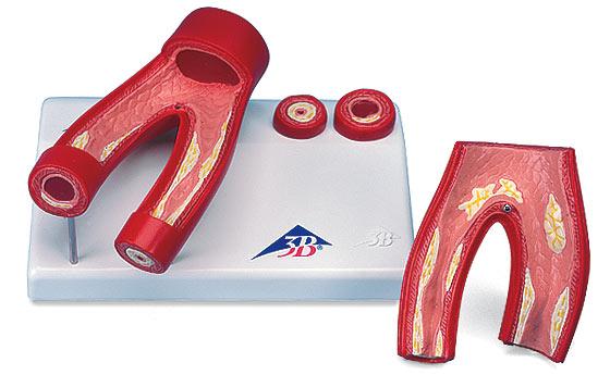 【送料無料】【感謝価格】3B社 病理学模型 動脈硬化症モデル断面レリーフ付2分解 (g40