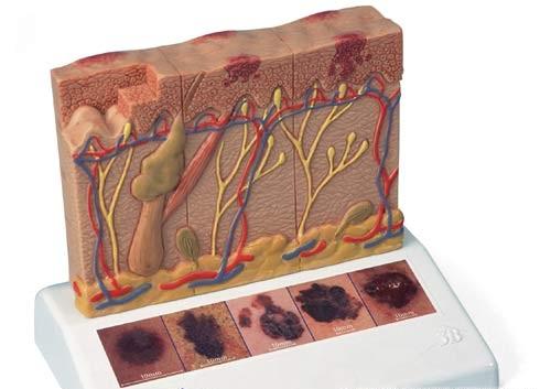 【送料無料】【感謝価格】3B社 病理学模型 皮膚癌(ガン)モデル (j15)