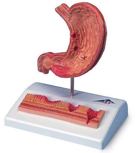【送料無料】【感謝価格】3B社 病理学模型 胃潰瘍モデル (k17)
