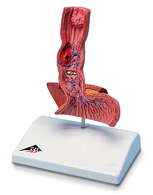 【感謝価格】3B社 病理学模型 食道疾患モデル (k18)
