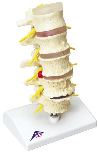 【送料無料】【無料健康相談 対象製品】椎間板ヘルニアと変形性脊椎症モデル  A795【02P06Aug16】