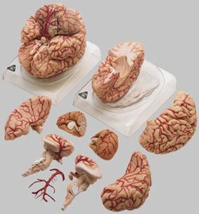 【送料無料】【無料健康相談 対象製品】ソムソ社 動脈付脳模型 bs23