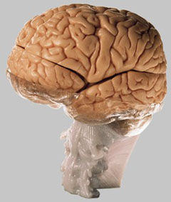 【送料無料】【無料健康相談付】ソムソ社 15分解脳模型 bs25