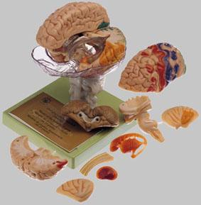 【送料無料】【無料健康相談付】ソムソ社 15分解脳模型(一部色付) bs25/1
