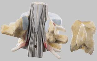 【送料無料】【無料健康相談 対象製品】ソムソ社 脊髄付第2腰椎模型 bs28