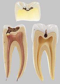 【送料無料】【無料健康相談 対象製品】ソムソ社 虫歯の大臼歯模型 es8 【smtb-s】 【fsp2124-6m】【02P06Aug16】