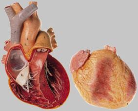 【送料無料】【無料健康相談 対象製品】ソムソ社 心臓模型 hs26