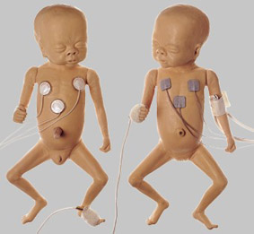【送料無料】【無料健康相談 対象製品】ソムソ社 早産乳児(女児) ms61
