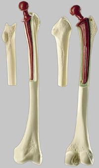 【送料無料】【無料健康相談 対象製品】ソムソ社 人工大腿骨模型 qs71 【smtb-s】 【fsp2124-6m】【02P06Aug16】