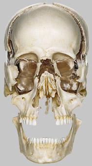 【送料無料】【無料健康相談 対象製品】ソムソ社 頭蓋骨分解模型 qs9