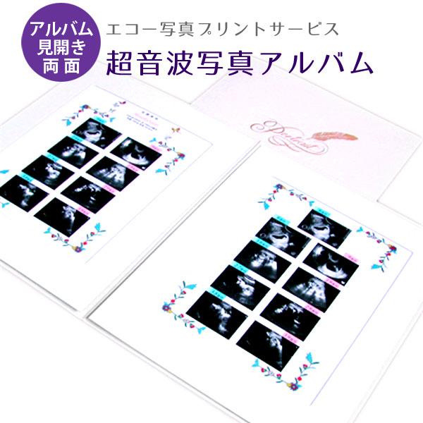 Siseil Ultrasound Photo Album Special Baby Ultrasound Photos