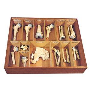 その他 骨折種類模型 【13種】 実物大 木製ケース付き M-131-0【代引不可】 ds-1877970