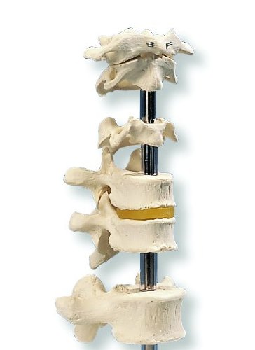 3B Scientific A75/1 5 Vertebrae Model (海外取寄せ品)