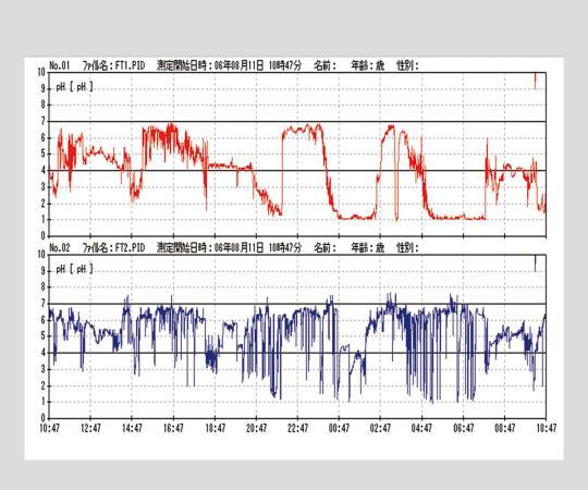 いまだけ!★ポイント最大15倍★【全国配送可】-解析ソフト W-ICP Iver.2.3 その他 型番W-ICPI Ver2.3 aso 2-9836-18 -【医療・研究機器】