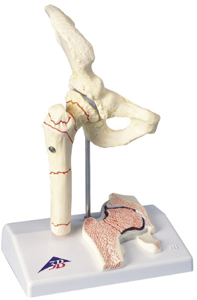 本物 ★ポイント最大15倍★【送料無料 A88】-大腿骨骨折解説模型(1/2) 品番 my11-2830-00-- A88 品番 my11-2830-00-- 1入り-【MY医科器機】, 伊香郡:f03bdb37 --- mokodusi.xyz