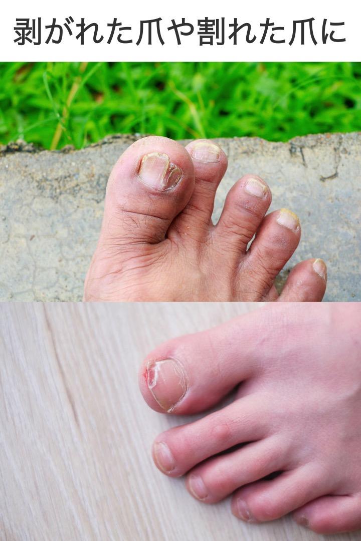 の た が 爪 剥がれ 足 親指 の 爪がはがれてしまいました…。痛いです・・・。