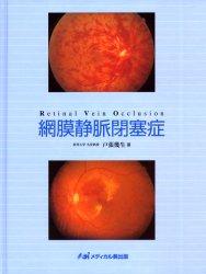 ◆◆網膜静脈閉塞症 / 戸張幾生/著 / メディカル葵出版