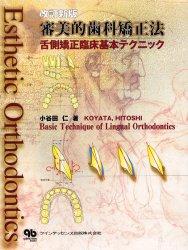 ◆◆審美的歯科矯正法 舌側矯正臨床基本テクニック / 小谷田仁/著 / クインテッセンス出版
