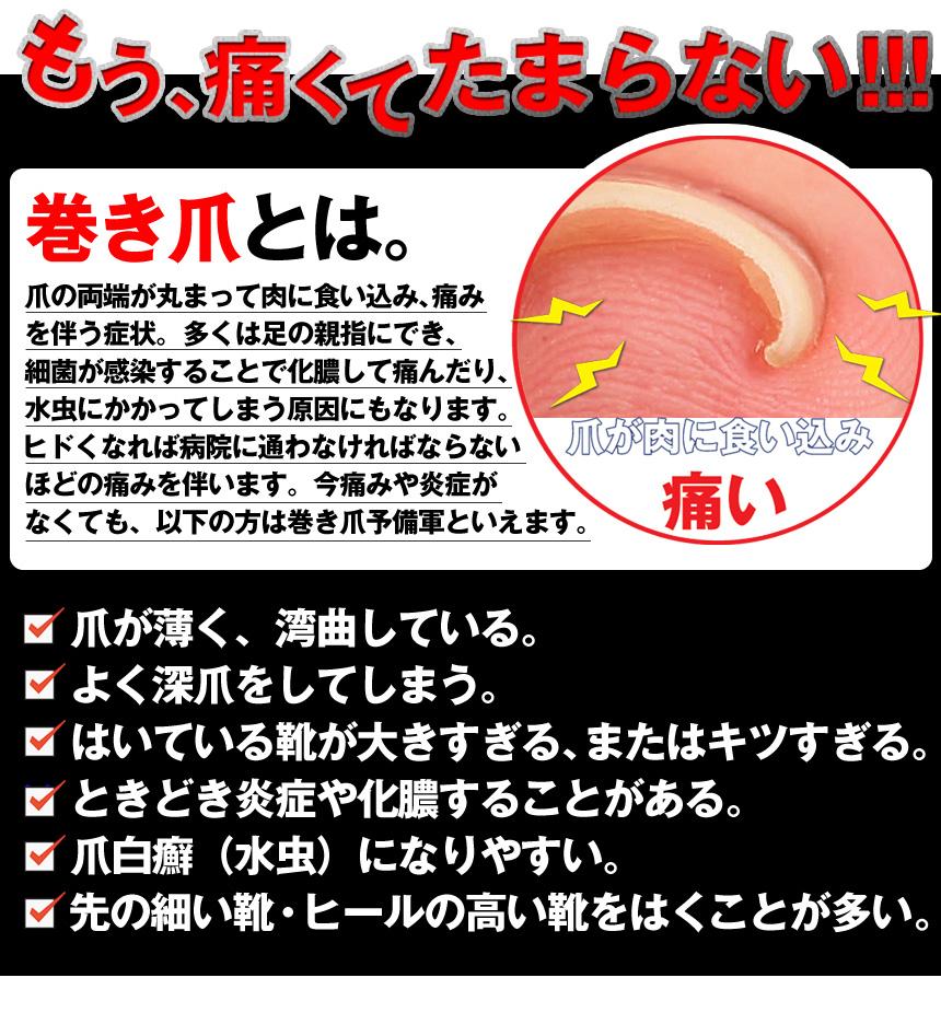 wide02   Rakuten Global Market: ☆ Special rolls ingrown nail wire ...