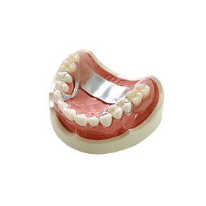 【送料無料】義歯デモンストレーションモデル/看護実習モデル 【上顎】 実物大 M-173-1【代引不可】