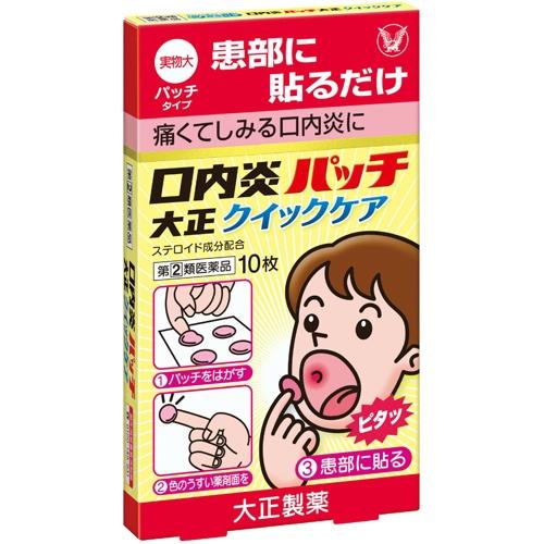 『貼る』口内炎治療薬です。口腔内ですぐれた付着力をもち、患部を刺激からしっかりカバーし、また、成分が持続的に作用します。 【×3個セット送料無料】【第(2)類医薬品】口内炎パッチ 大正クイックケア 10枚(セルフメディケーション税制対象)(4987306019508)『貼る』口内炎治療薬