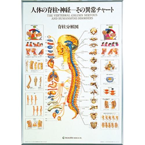 【送料無料】 人体の脊椎・神経-その異常チャート 104×74cm タカチホメディカル