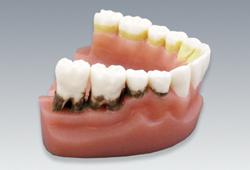 【送料無料】 歯周疾患と歯磨き指導模型(下顎のみ・2倍大) 松風