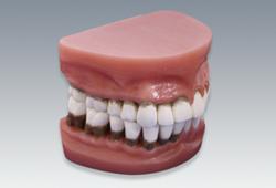 【送料無料】 歯周疾患分類模型(2倍大) 松風